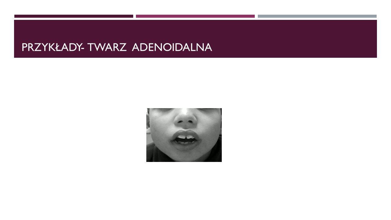 Przykłady- twarz adenoidalna