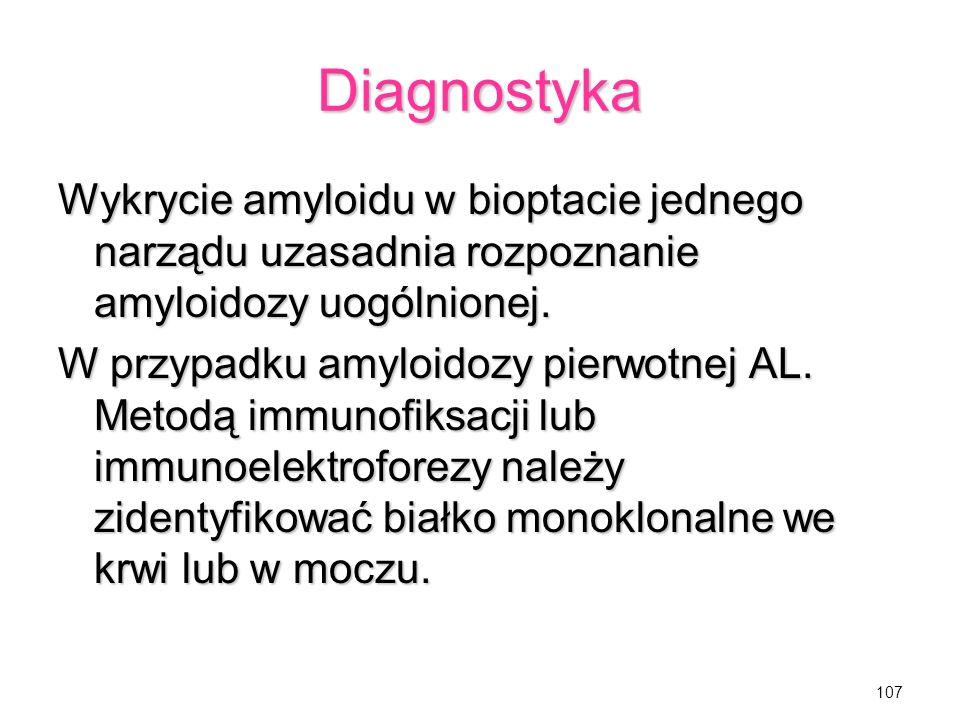 Diagnostyka Wykrycie amyloidu w bioptacie jednego narządu uzasadnia rozpoznanie amyloidozy uogólnionej.