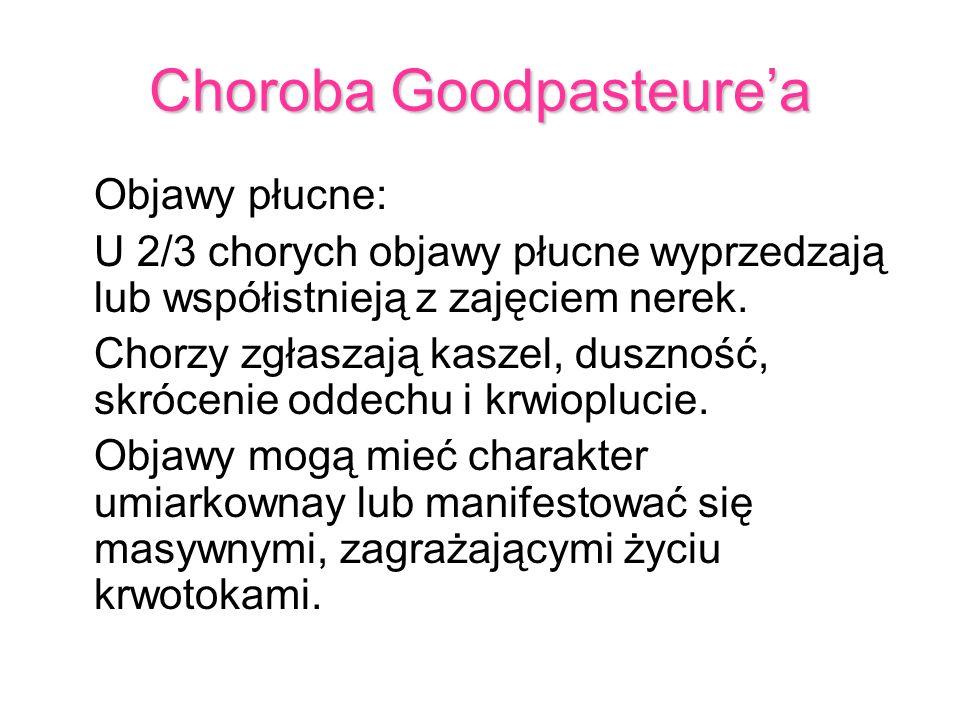 Choroba Goodpasteure'a