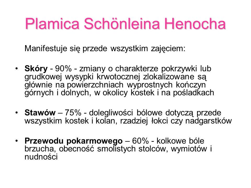 Plamica Schönleina Henocha