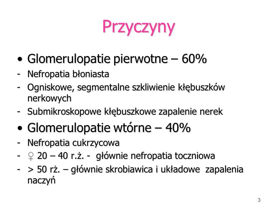 Przyczyny Glomerulopatie pierwotne – 60% Glomerulopatie wtórne – 40%