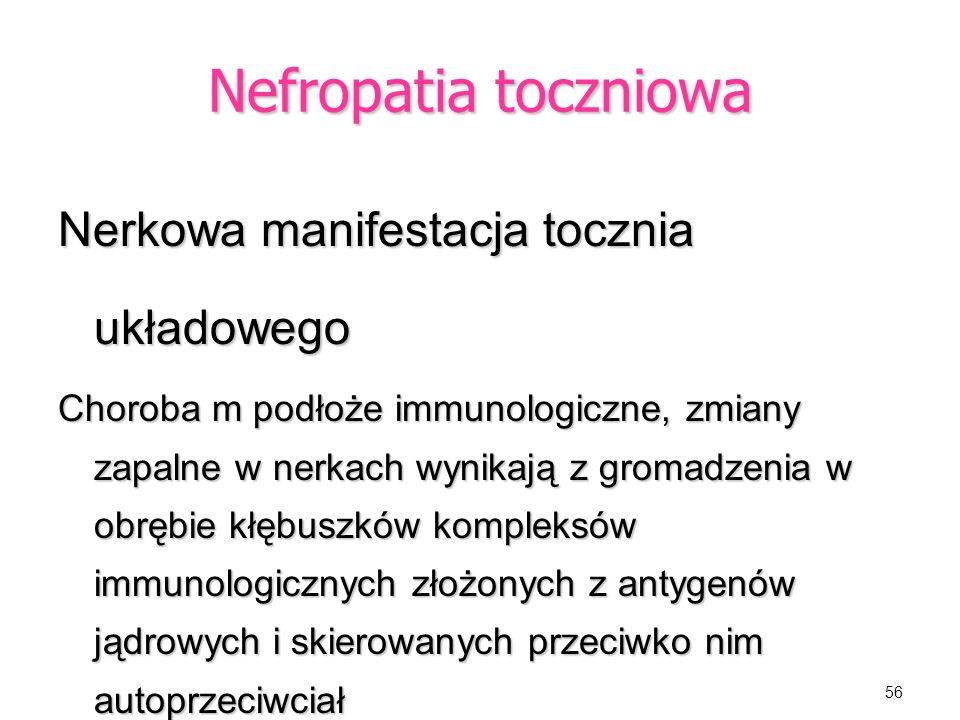 Nefropatia toczniowa Nerkowa manifestacja tocznia układowego