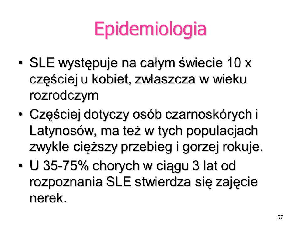 Epidemiologia SLE występuje na całym świecie 10 x częściej u kobiet, zwłaszcza w wieku rozrodczym.
