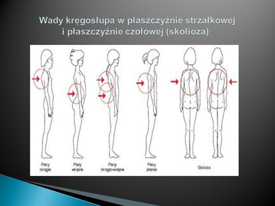 Wady kręgosłupa w płaszczyźnie strzałkowej i płaszczyźnie czołowej (skolioza)