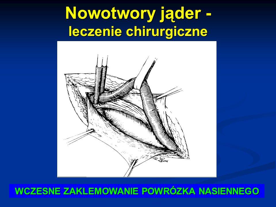 Nowotwory jąder - leczenie chirurgiczne