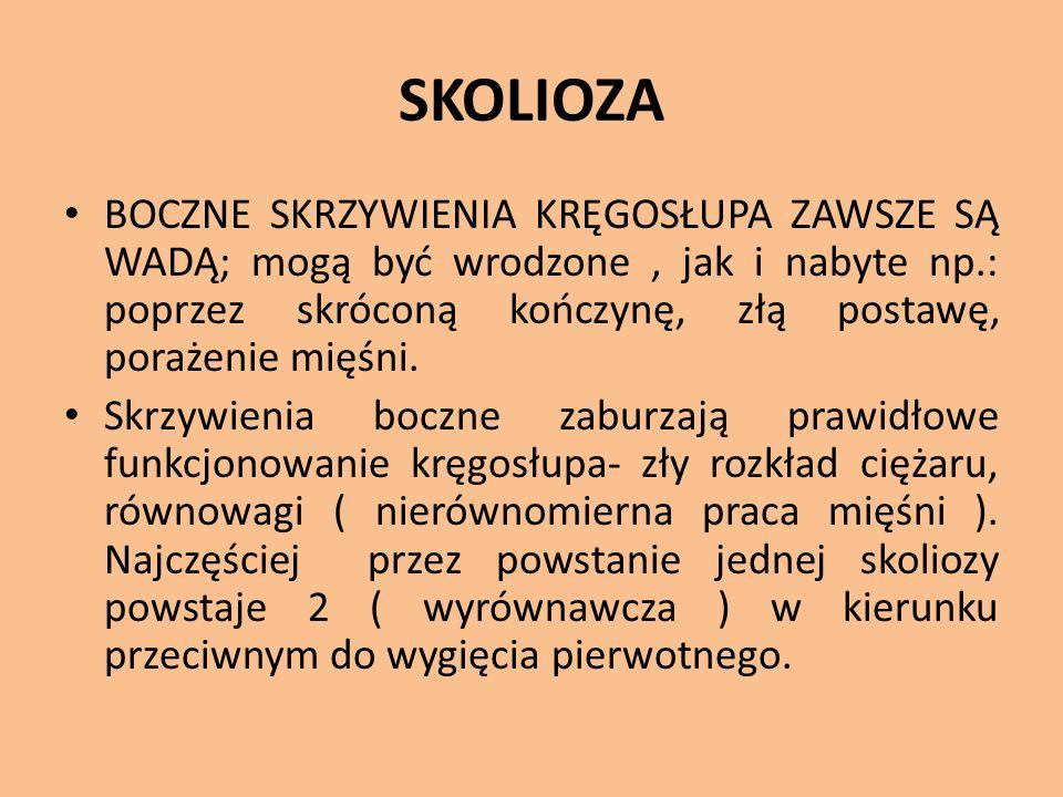 SKOLIOZA