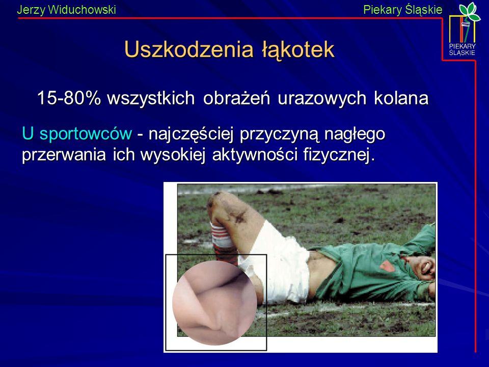 15-80% wszystkich obrażeń urazowych kolana