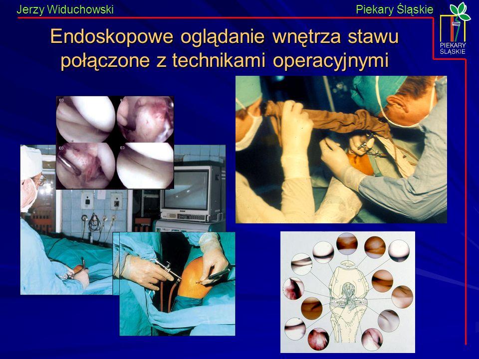 Endoskopowe oglądanie wnętrza stawu połączone z technikami operacyjnymi