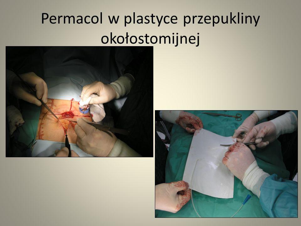 Permacol w plastyce przepukliny okołostomijnej