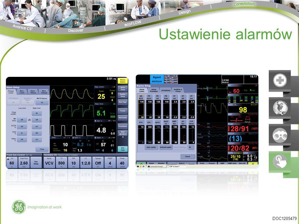 Ustawienie alarmów DOC1205479