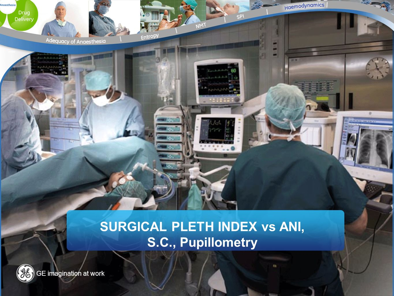 SURGICAL PLETH INDEX vs ANI, S.C., Pupillometry
