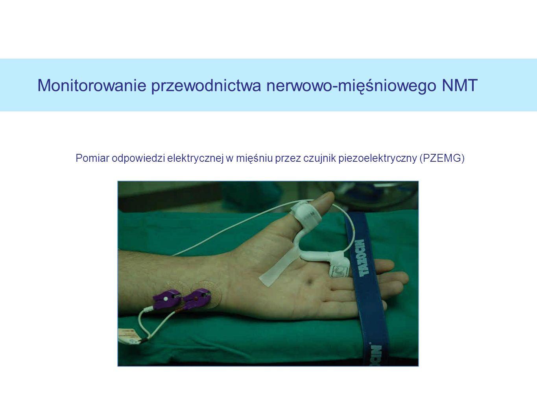 Monitorowanie przewodnictwa nerwowo-mięśniowego NMT