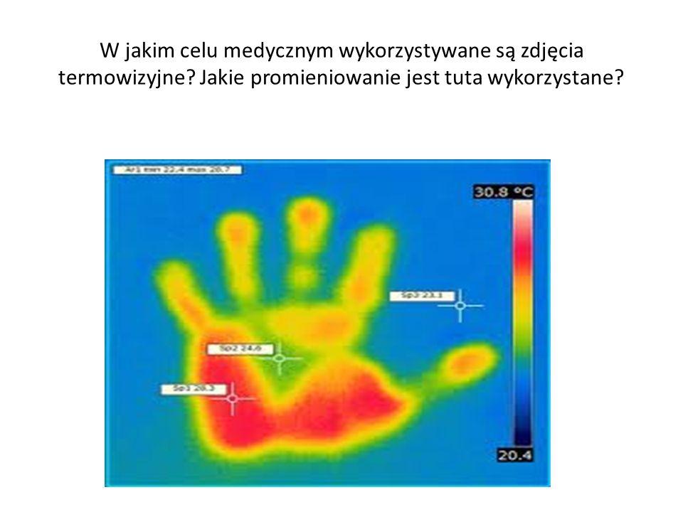 W jakim celu medycznym wykorzystywane są zdjęcia termowizyjne