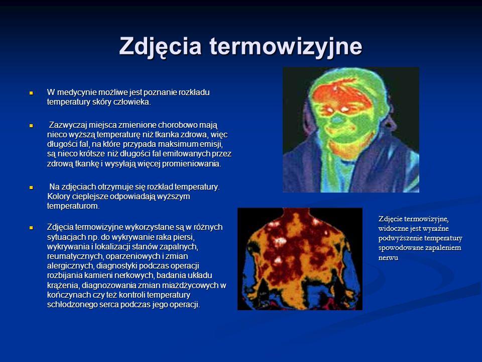 Zdjęcia termowizyjne W medycynie możliwe jest poznanie rozkładu temperatury skóry człowieka.