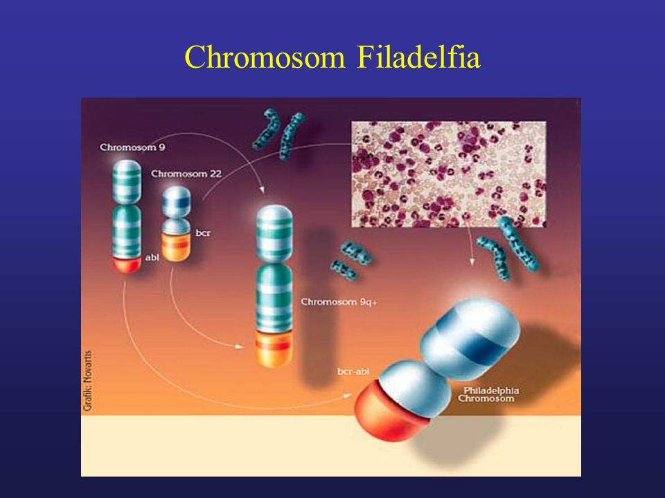 Chromosom Filadelfia