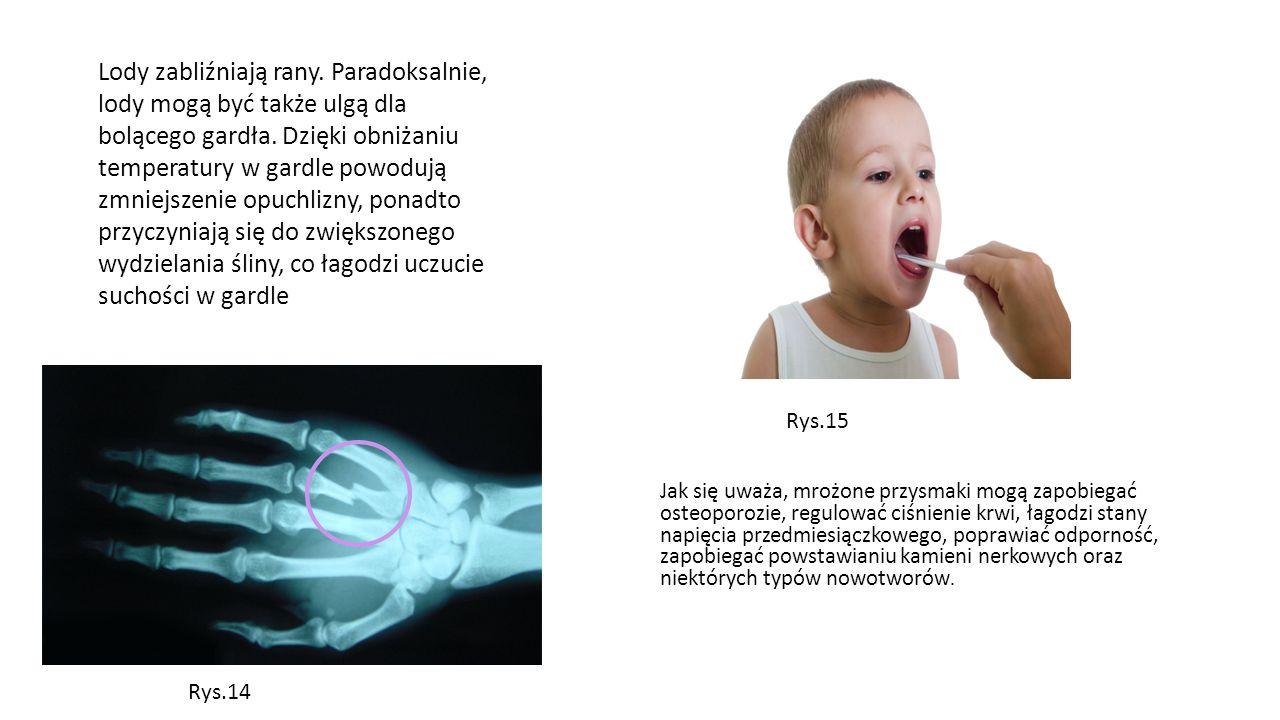Lody zabliźniają rany. Paradoksalnie, lody mogą być także ulgą dla bolącego gardła. Dzięki obniżaniu temperatury w gardle powodują zmniejszenie opuchlizny, ponadto przyczyniają się do zwiększonego wydzielania śliny, co łagodzi uczucie suchości w gardle