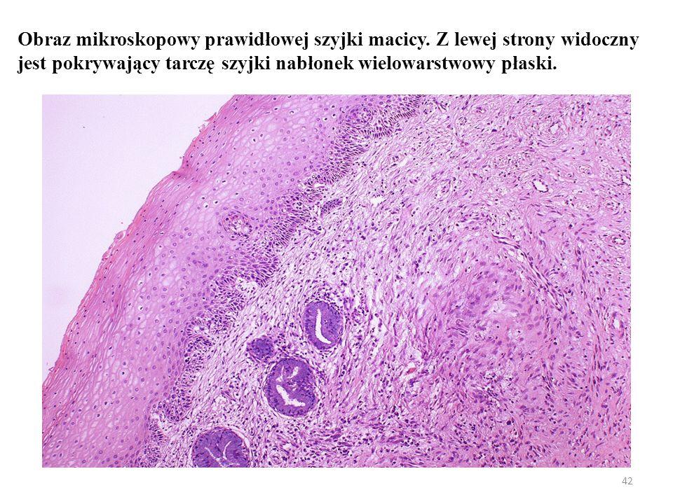 Obraz mikroskopowy prawidłowej szyjki macicy
