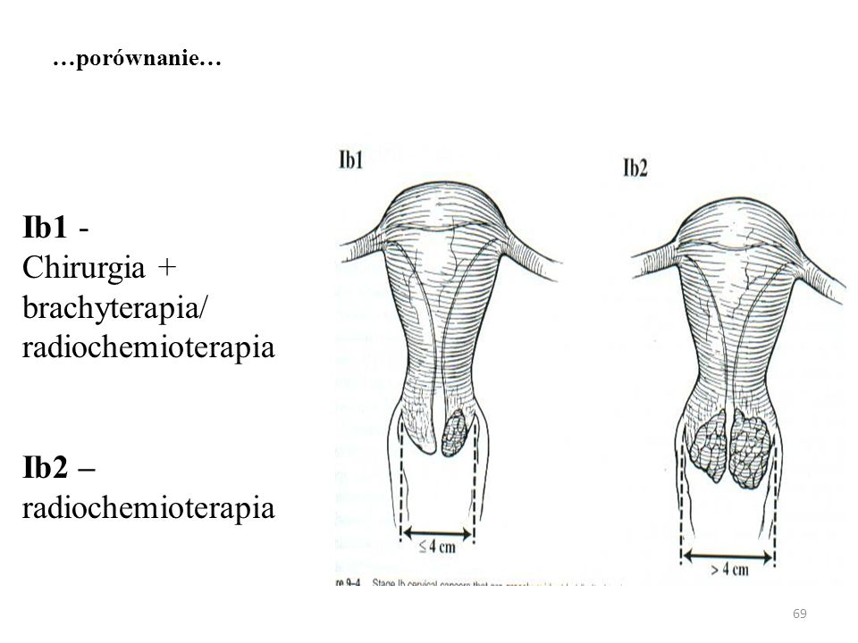 Ib1 - Chirurgia + brachyterapia/ radiochemioterapia Ib2 –