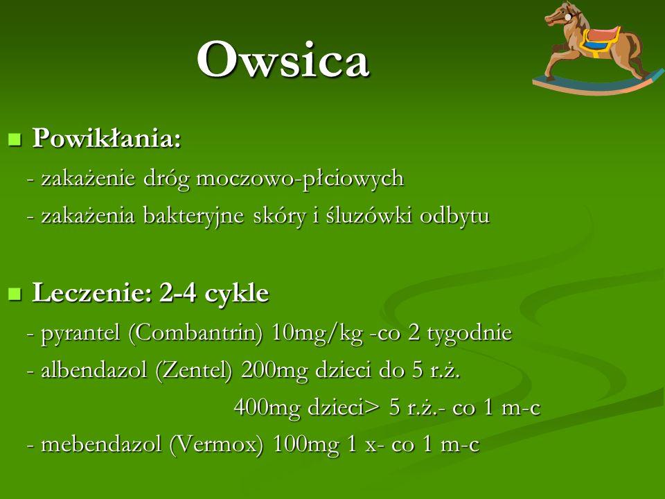 Owsica Powikłania: Leczenie: 2-4 cykle