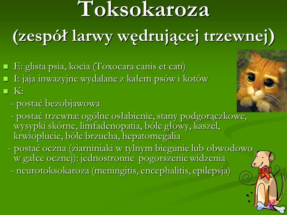 Toksokaroza (zespół larwy wędrującej trzewnej)