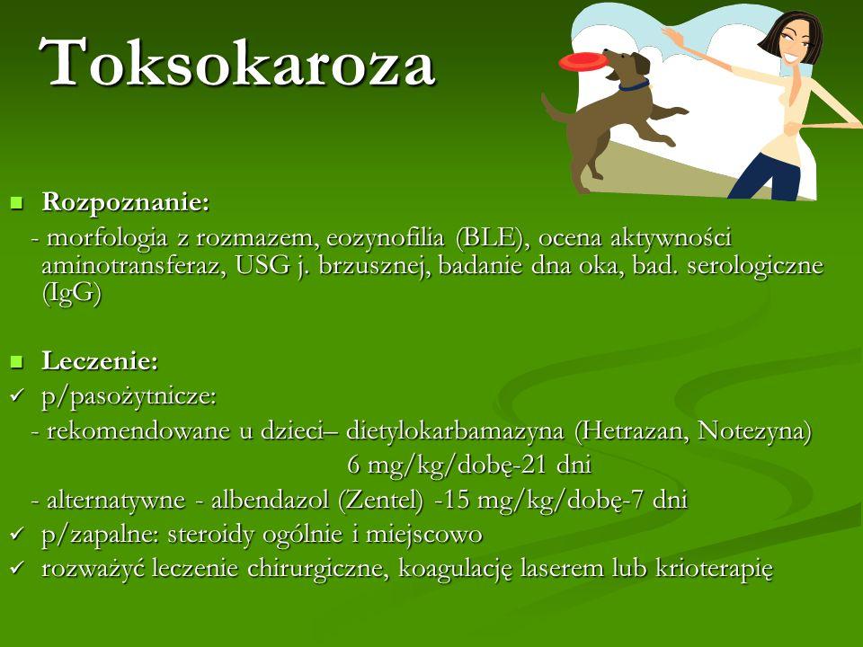 Toksokaroza Rozpoznanie: