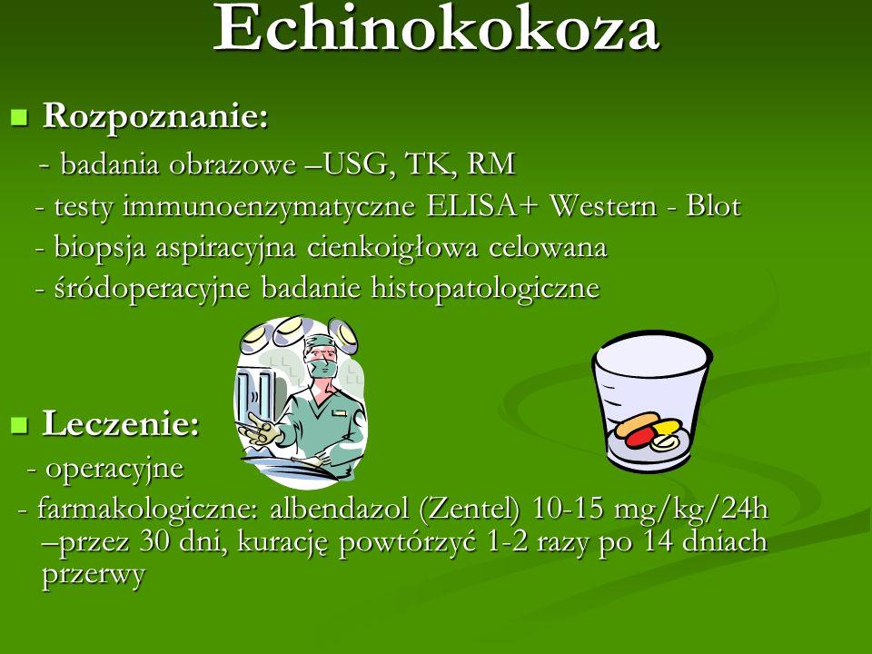 Echinokokoza Rozpoznanie: - badania obrazowe –USG, TK, RM Leczenie: