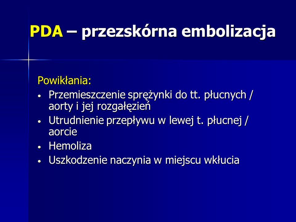 PDA – przezskórna embolizacja