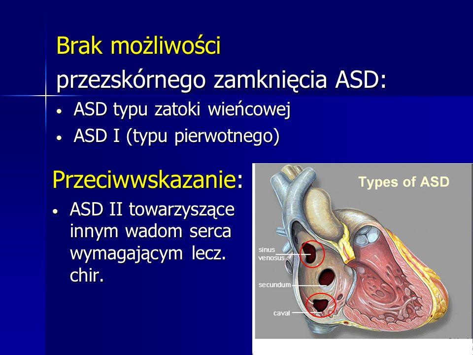 przezskórnego zamknięcia ASD: