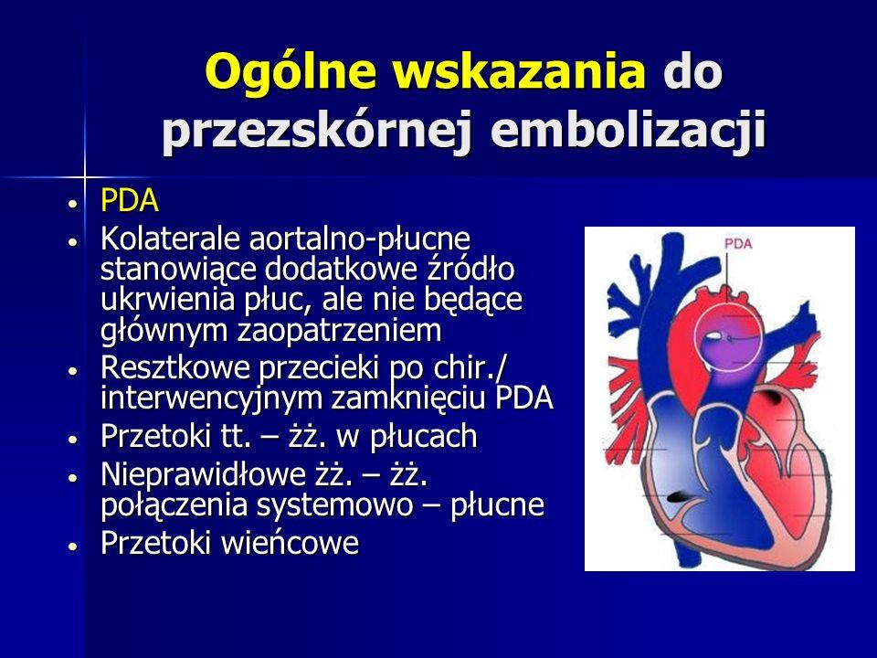 Ogólne wskazania do przezskórnej embolizacji