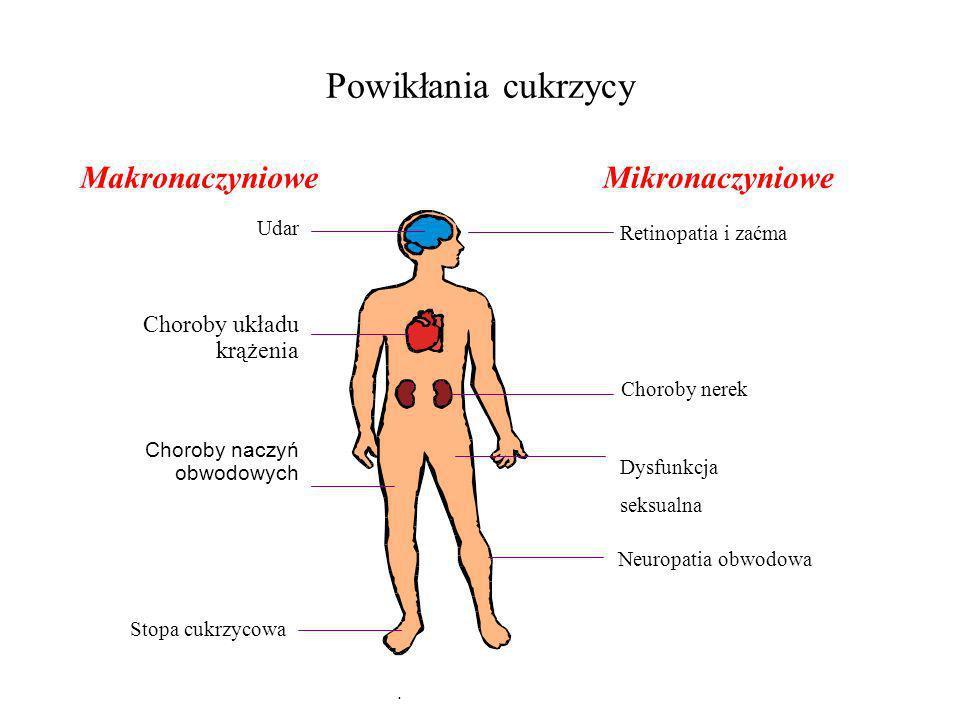 Powikłania cukrzycy Makronaczyniowe Mikronaczyniowe Choroby układu
