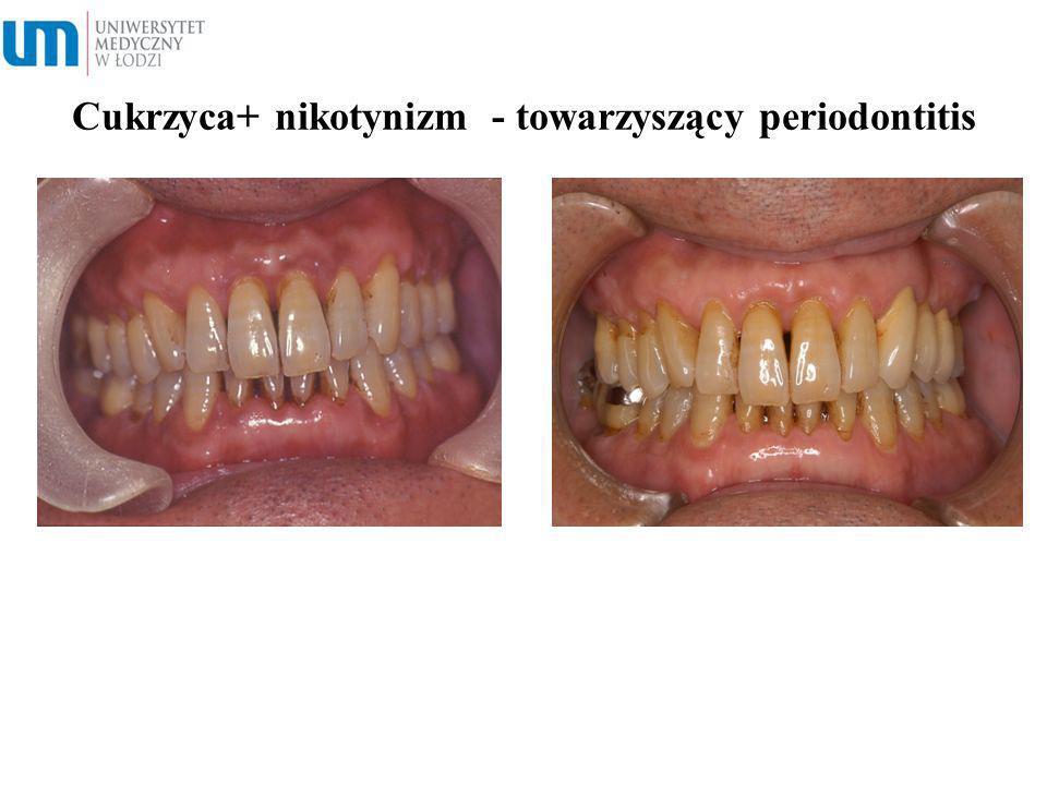 Cukrzyca+ nikotynizm - towarzyszący periodontitis