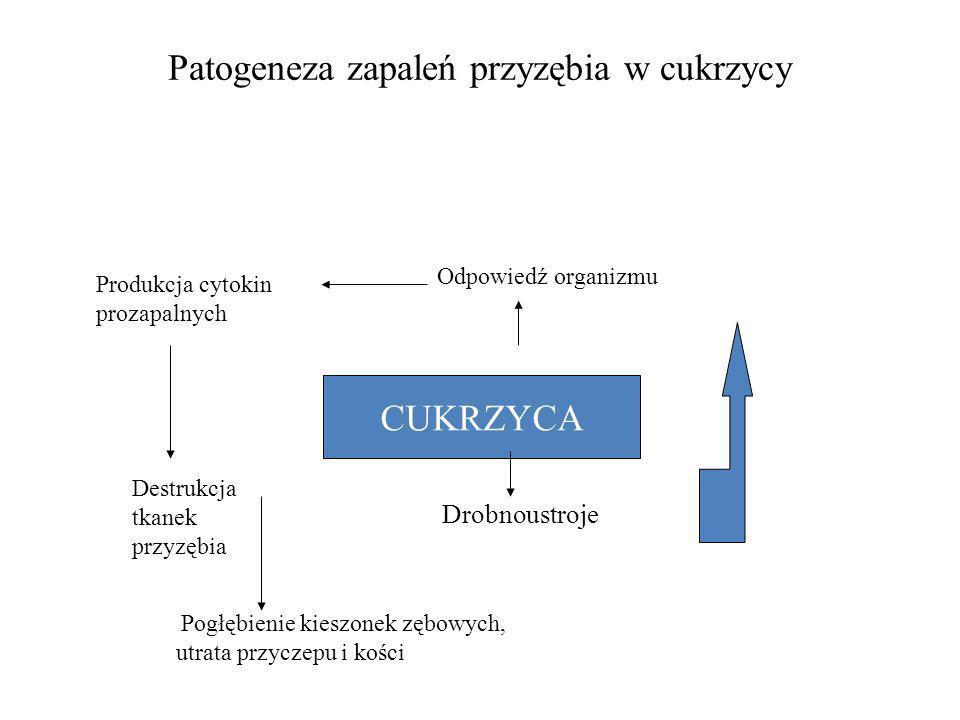 Patogeneza zapaleń przyzębia w cukrzycy