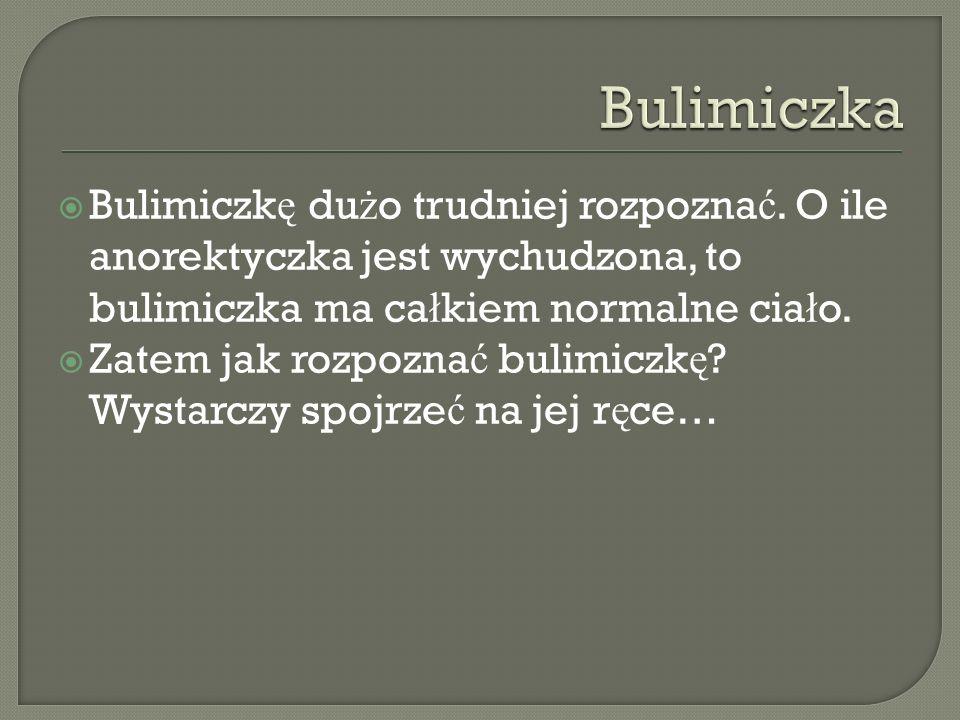 Bulimiczka Bulimiczkę dużo trudniej rozpoznać. O ile anorektyczka jest wychudzona, to bulimiczka ma całkiem normalne ciało.