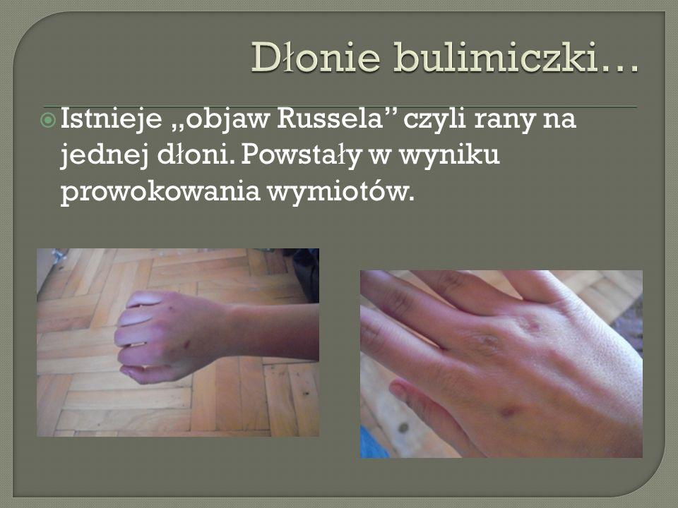 """Dłonie bulimiczki… Istnieje """"objaw Russela czyli rany na jednej dłoni."""