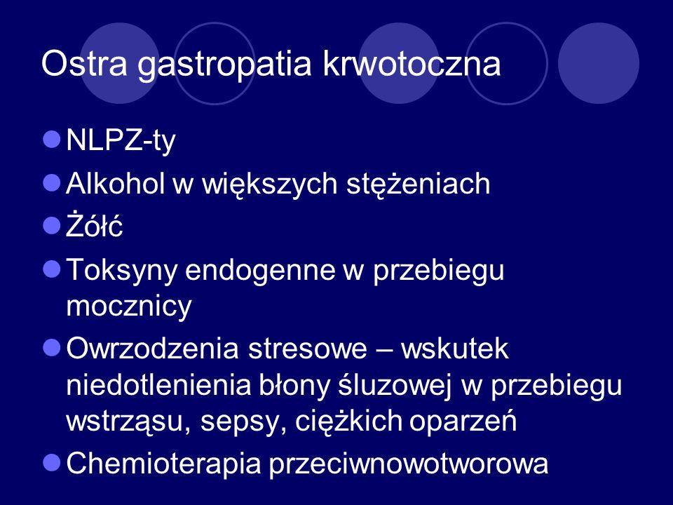 Ostra gastropatia krwotoczna
