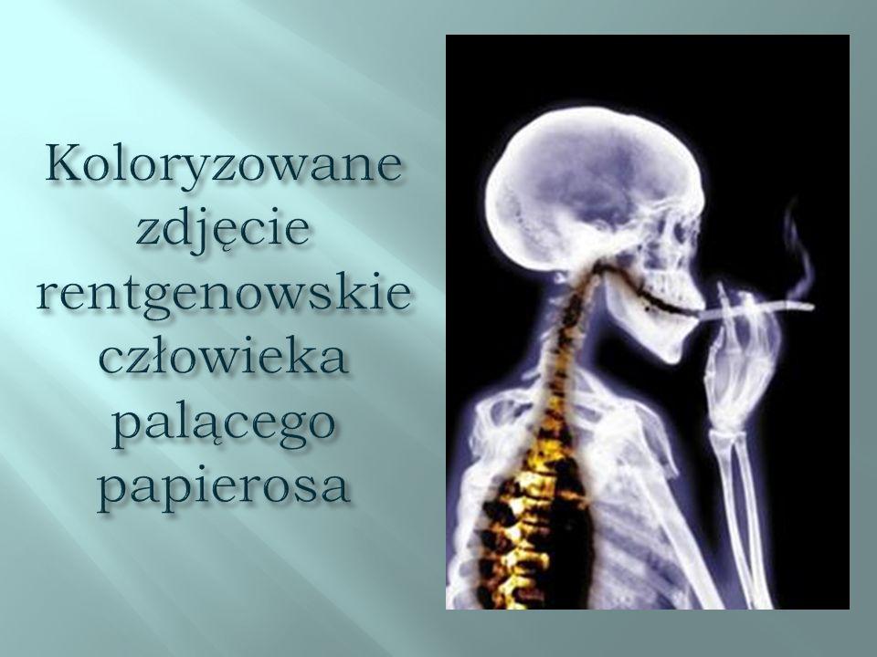 Koloryzowane zdjęcie rentgenowskie człowieka palącego papierosa