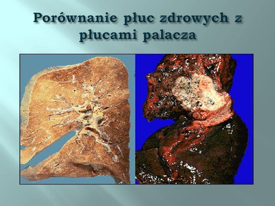 Porównanie płuc zdrowych z płucami palacza