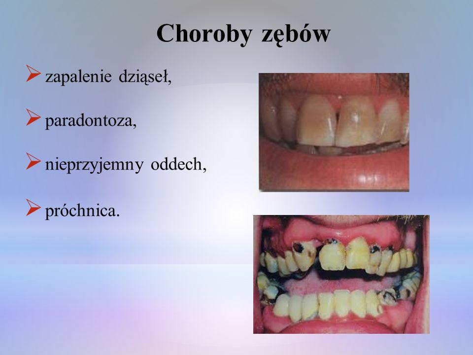 Choroby zębów zapalenie dziąseł, paradontoza, nieprzyjemny oddech,