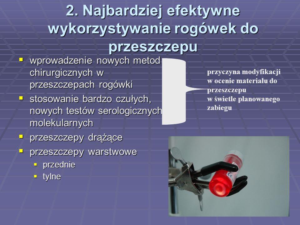 2. Najbardziej efektywne wykorzystywanie rogówek do przeszczepu