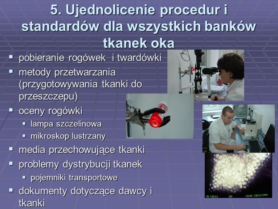 5. Ujednolicenie procedur i standardów dla wszystkich banków tkanek oka