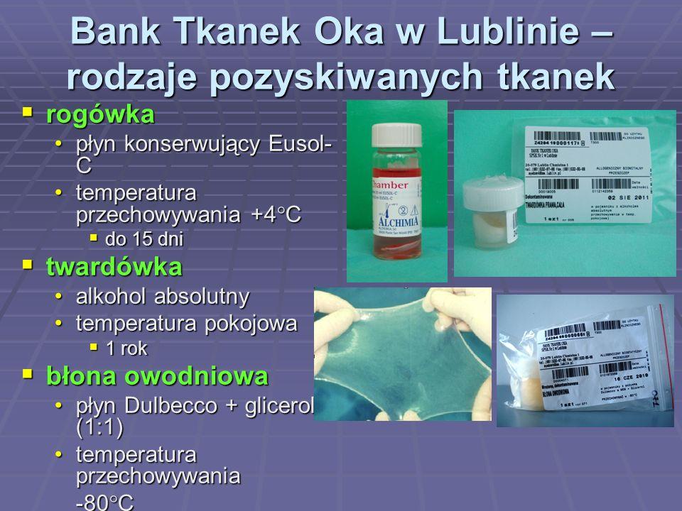 Bank Tkanek Oka w Lublinie – rodzaje pozyskiwanych tkanek
