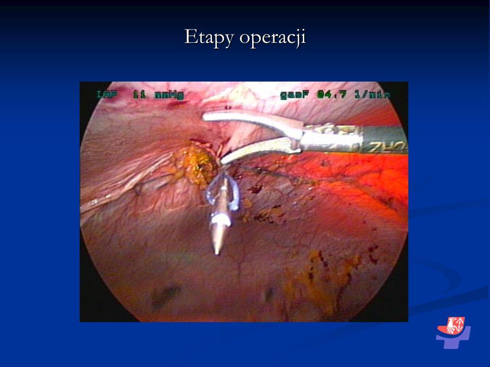 Etapy operacji