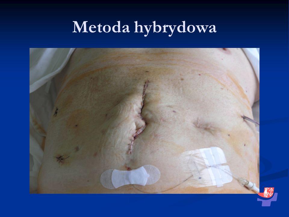 Metoda hybrydowa