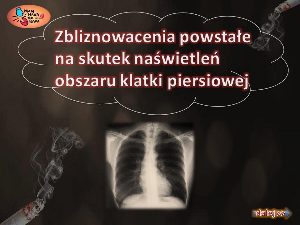 Zbliznowacenia powstałe na skutek naświetleń obszaru klatki piersiowej