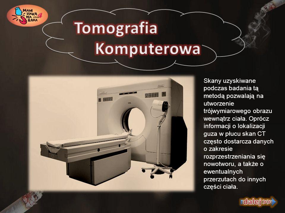 Tomografia Komputerowa dalej >>