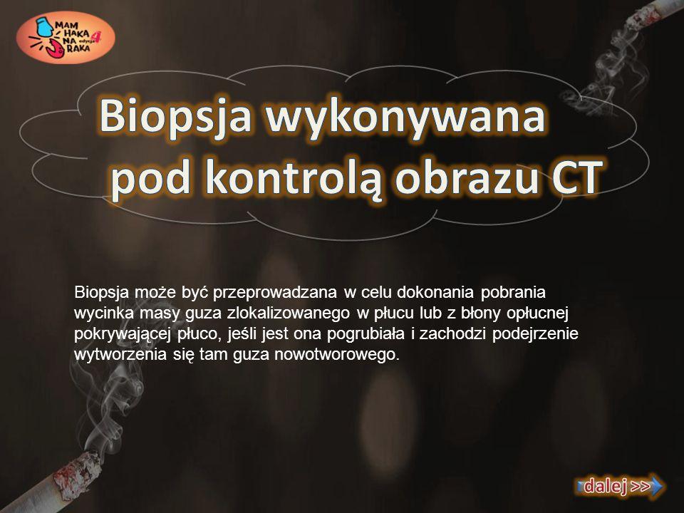 Biopsja wykonywana pod kontrolą obrazu CT dalej >>