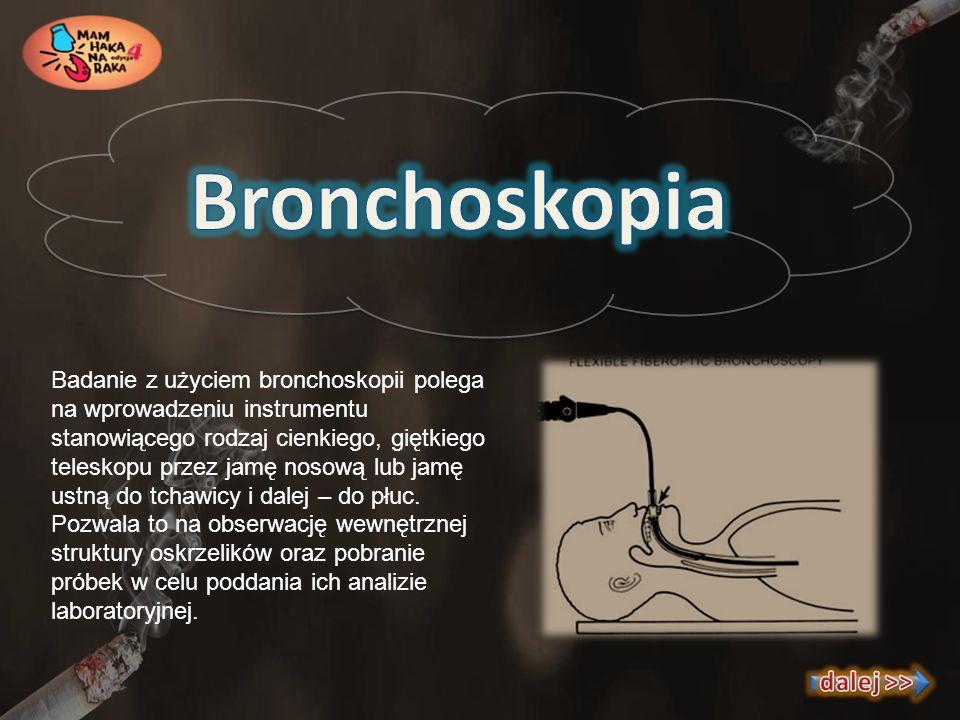 Bronchoskopia dalej >>
