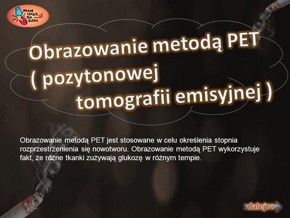 Obrazowanie metodą PET ( pozytonowej tomografii emisyjnej )