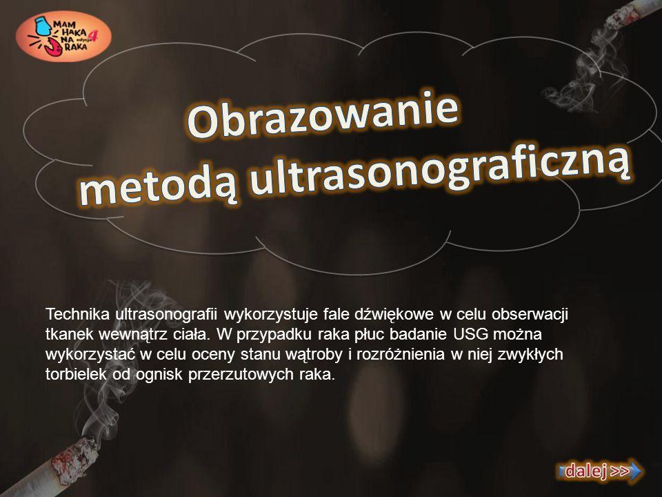 metodą ultrasonograficzną