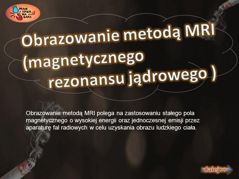 Obrazowanie metodą MRI (magnetycznego rezonansu jądrowego )